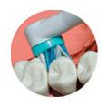 ayudando a prevenir enfermedades de las encías
